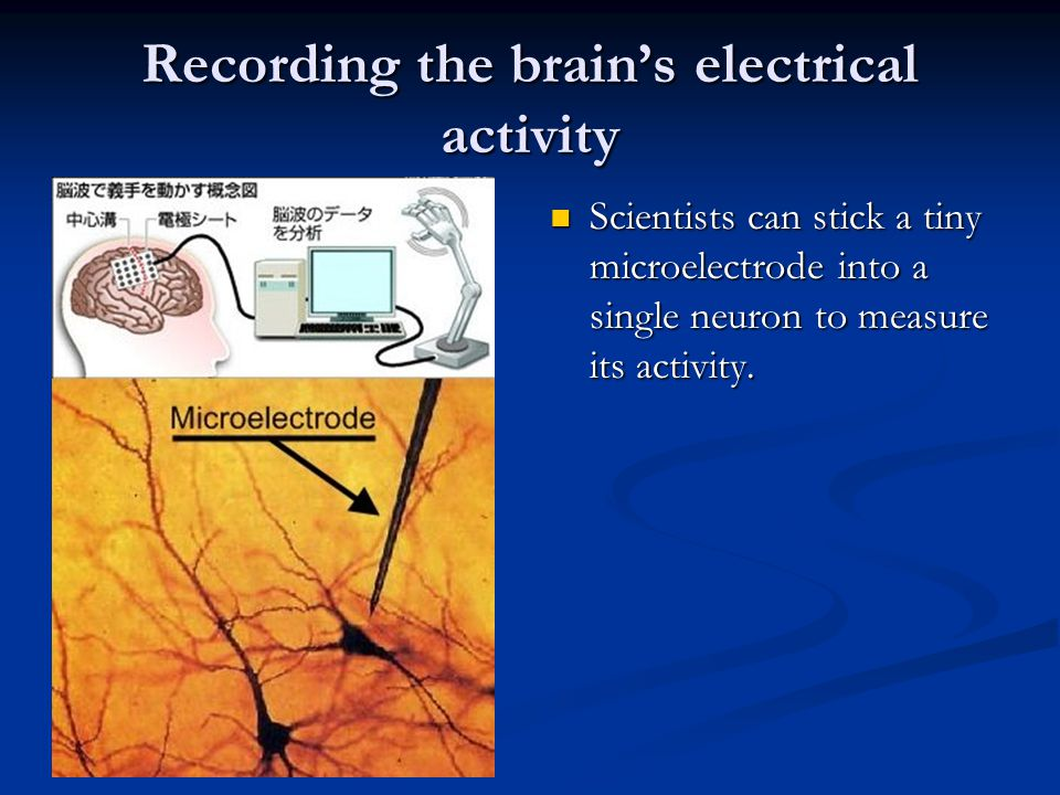 Recording the brain's electrical activity