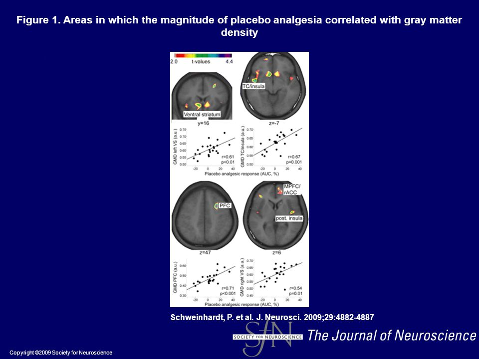 Figure 1. Areas in which the magnitude of placebo analgesia correlated with gray matter density