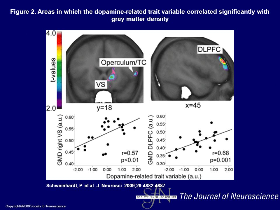 Figure 2. Areas in which the dopamine-related trait variable correlated significantly with gray matter density