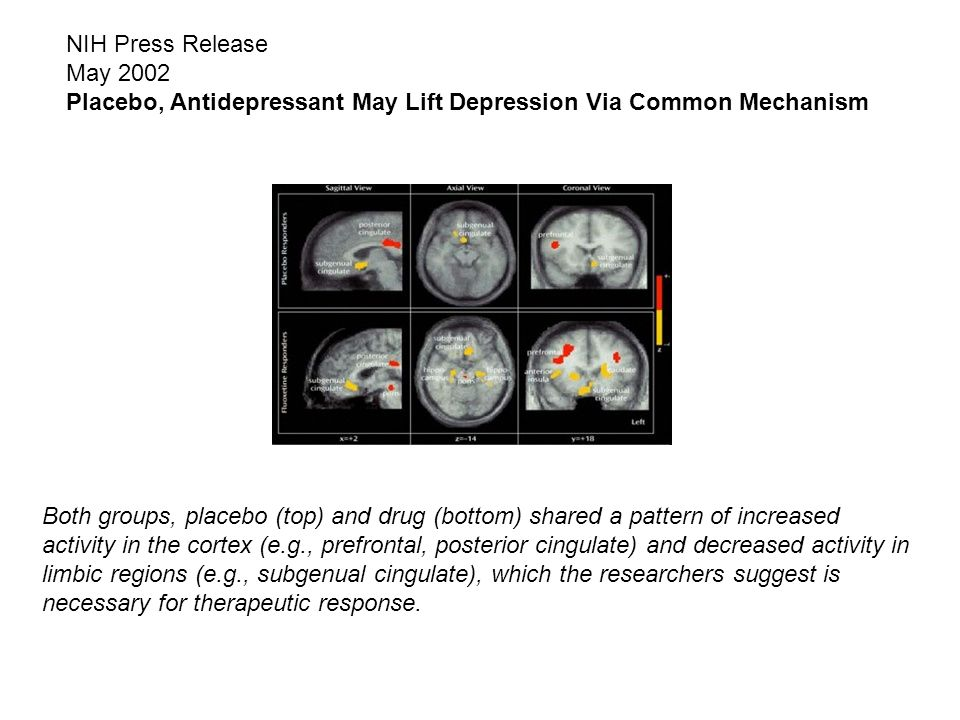 NIH Press Release May 2002 Placebo, Antidepressant May Lift Depression Via Common Mechanism.