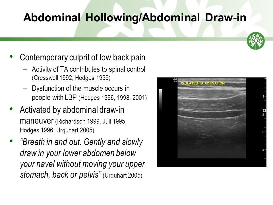 Abdominal Hollowing/Abdominal Draw-in