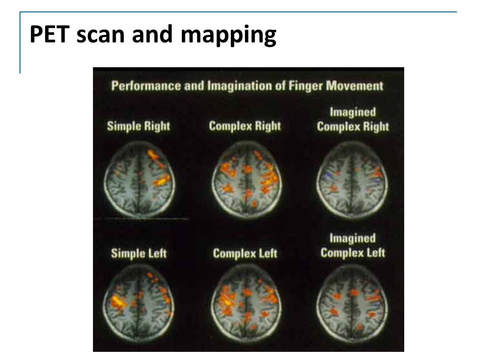 PET scan and mapping