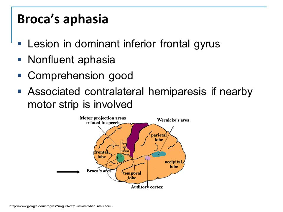 Broca's aphasia Lesion in dominant inferior frontal gyrus