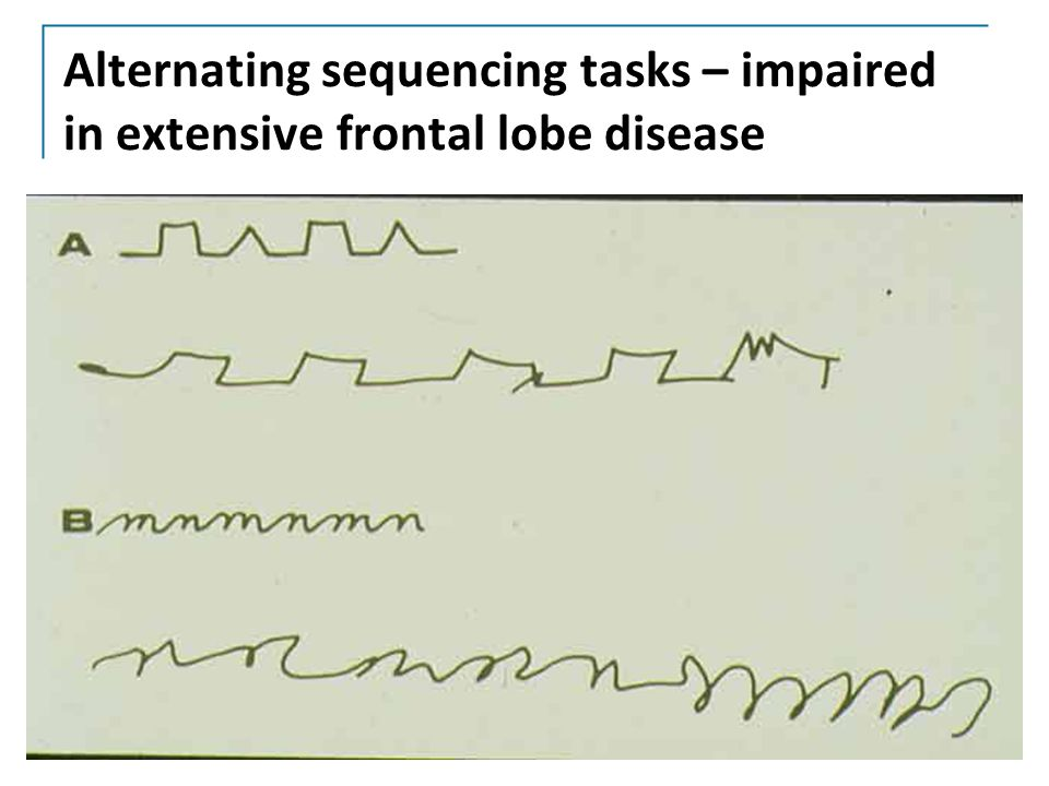 Alternating sequencing tasks – impaired in extensive frontal lobe disease