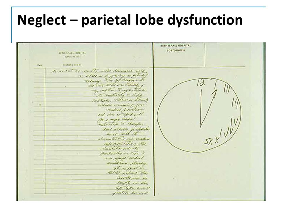 Neglect – parietal lobe dysfunction