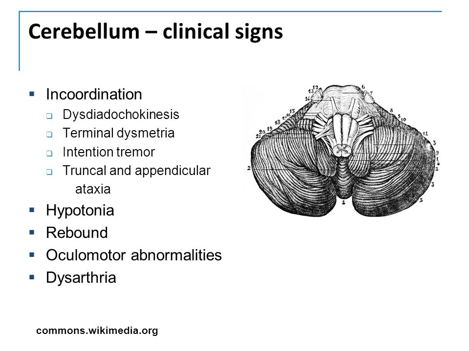 Cerebellum – clinical signs
