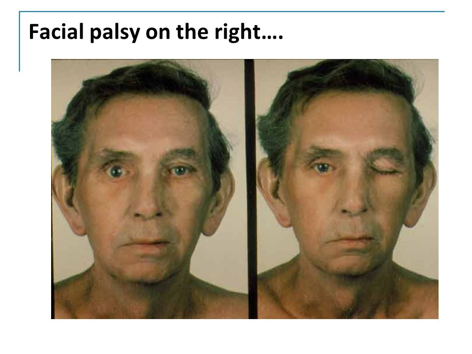 Facial palsy on the right….