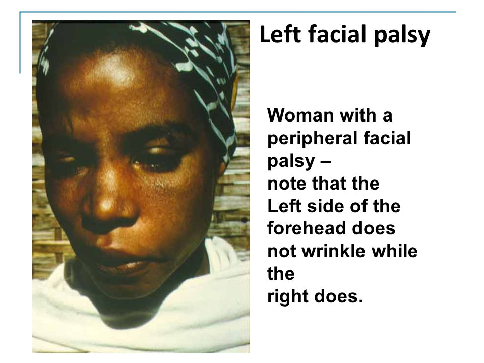 Left facial palsy Woman with a peripheral facial palsy – note that the
