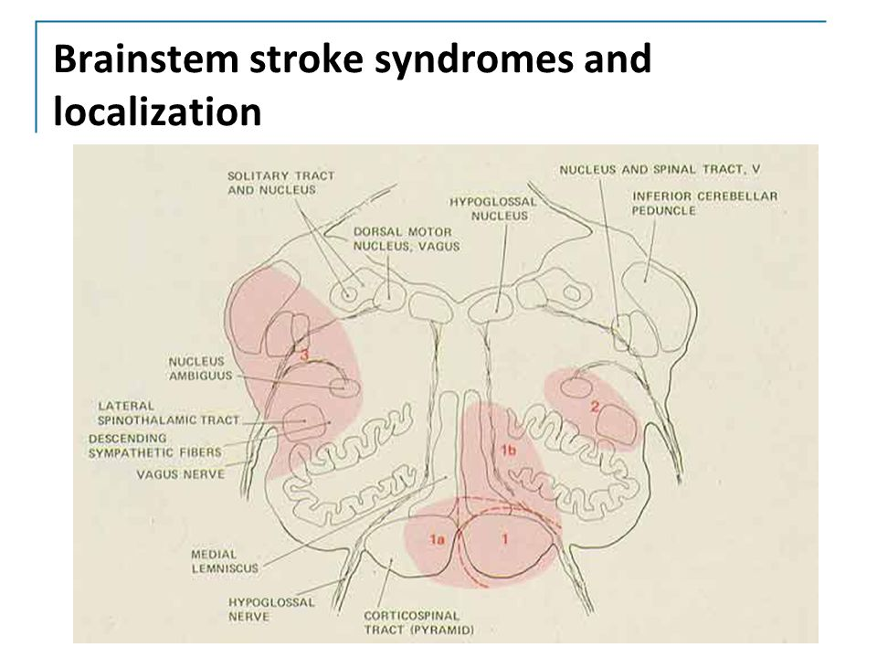 Brainstem stroke syndromes and localization