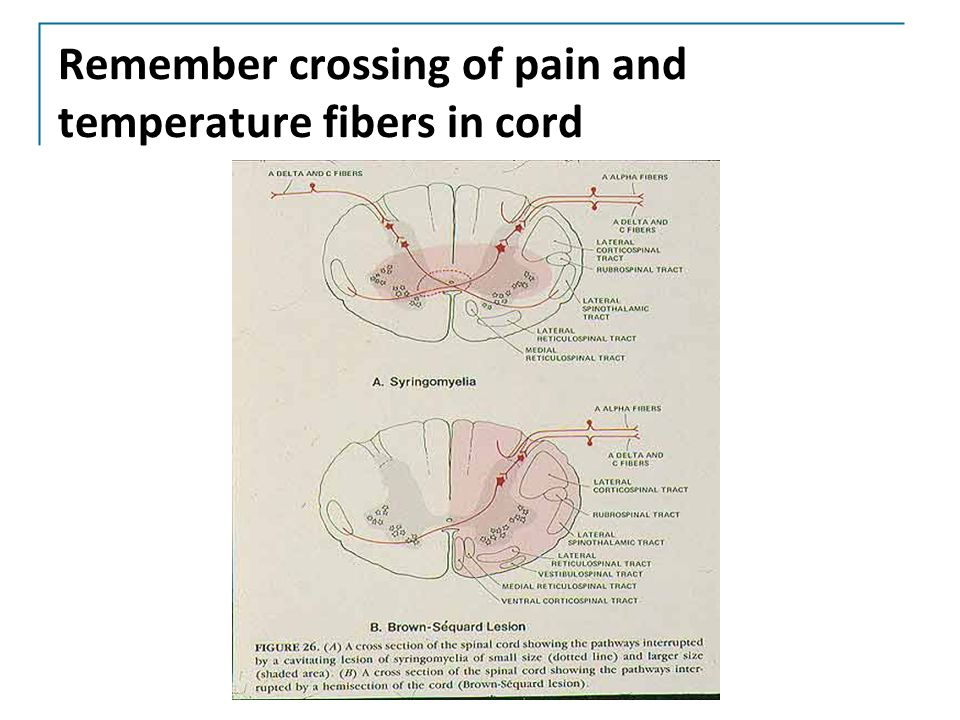 Remember crossing of pain and temperature fibers in cord