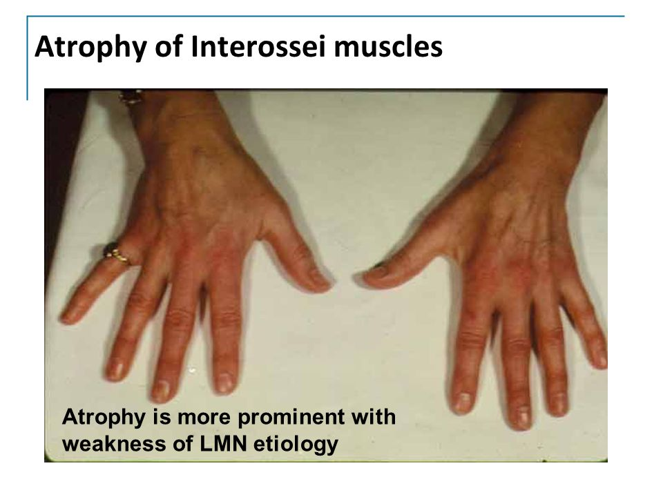 Atrophy of Interossei muscles