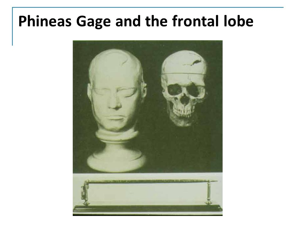 Phineas Gage and the frontal lobe