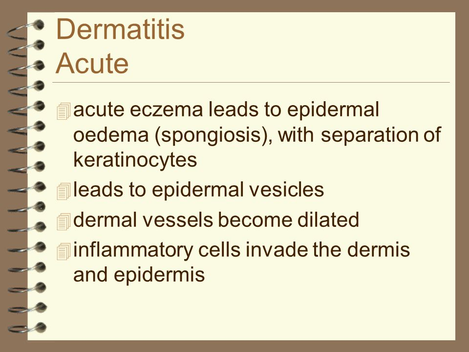 Dermatitis Acute acute eczema leads to epidermal oedema (spongiosis), with separation of keratinocytes.