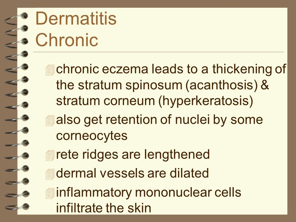 Dermatitis Chronic chronic eczema leads to a thickening of the stratum spinosum (acanthosis) & stratum corneum (hyperkeratosis)
