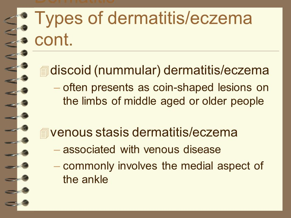 Dermatitis Types of dermatitis/eczema cont.