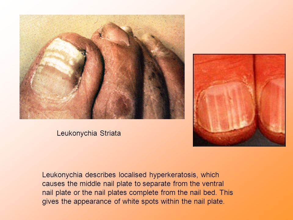 Leukonychia Striata