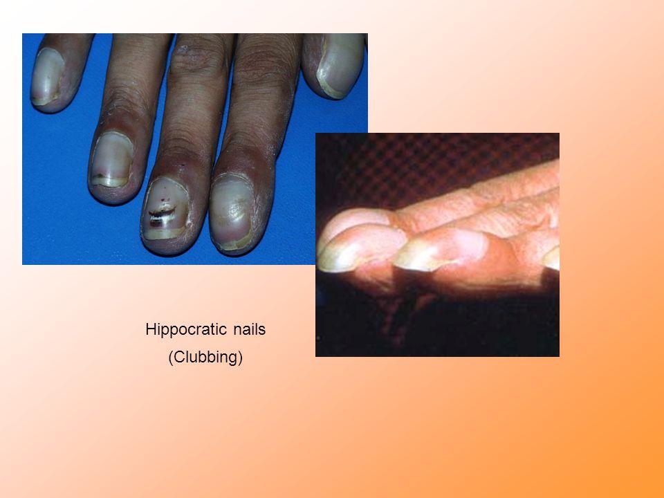 Hippocratic nails (Clubbing)