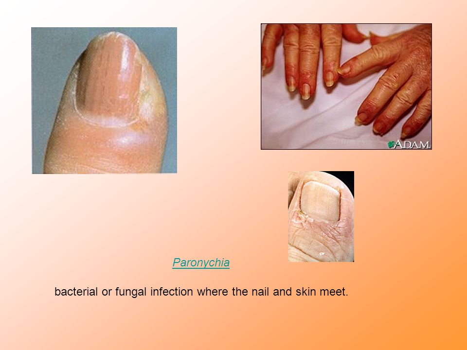 Paronychia bacterial or fungal infection where the nail and skin meet.