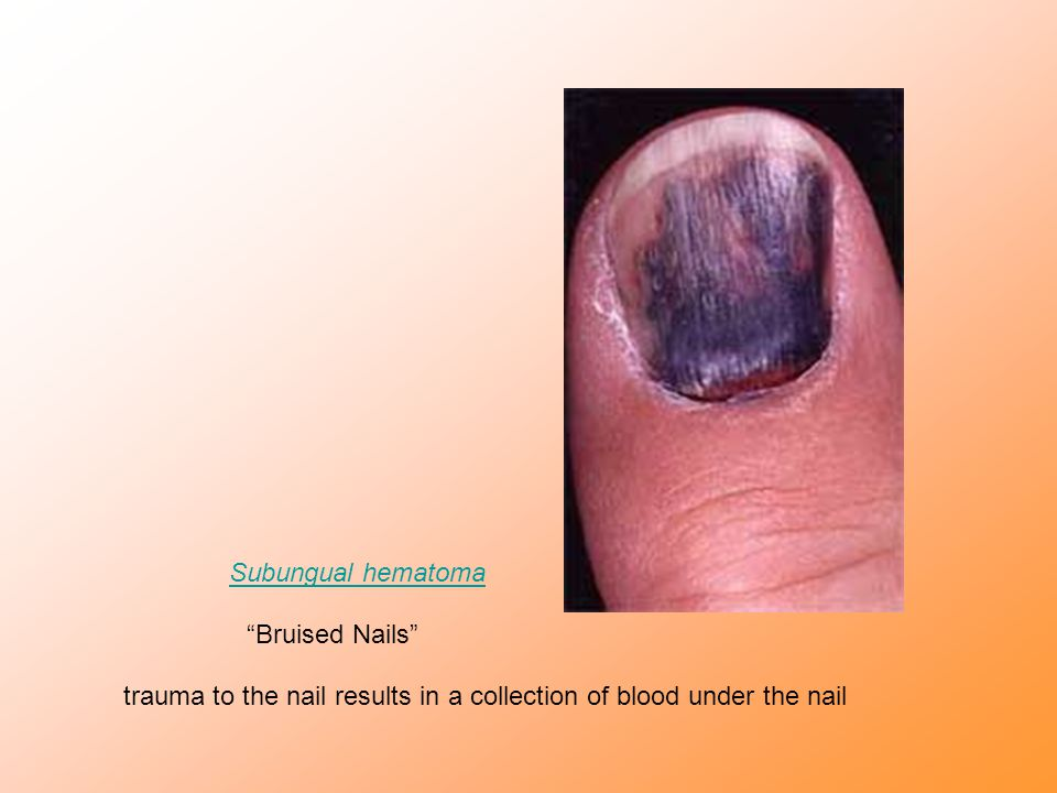Subungual hematoma Bruised Nails trauma to the nail results in a collection of blood under the nail.