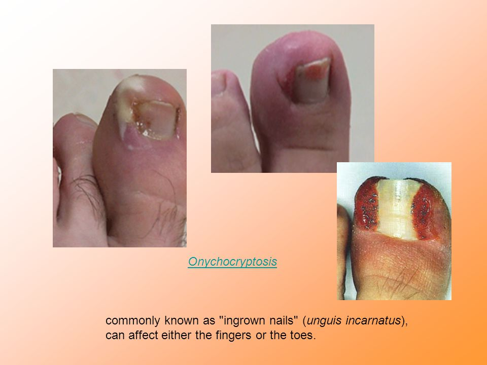 Onychocryptosis commonly known as ingrown nails (unguis incarnatus), can affect either the fingers or the toes.