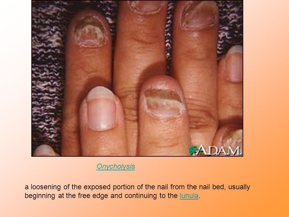 Onycholysis a loosening of the exposed portion of the nail from the nail bed, usually beginning at the free edge and continuing to the lunula.