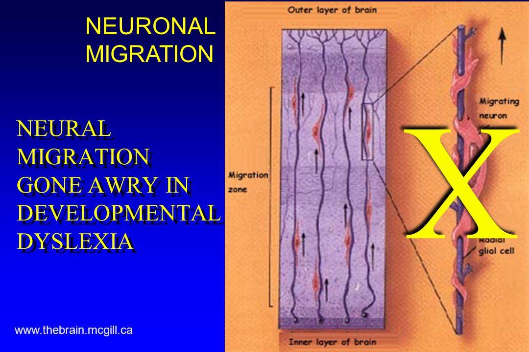 NEURAL MIGRATION GONE AWRY IN DEVELOPMENTAL DYSLEXIA