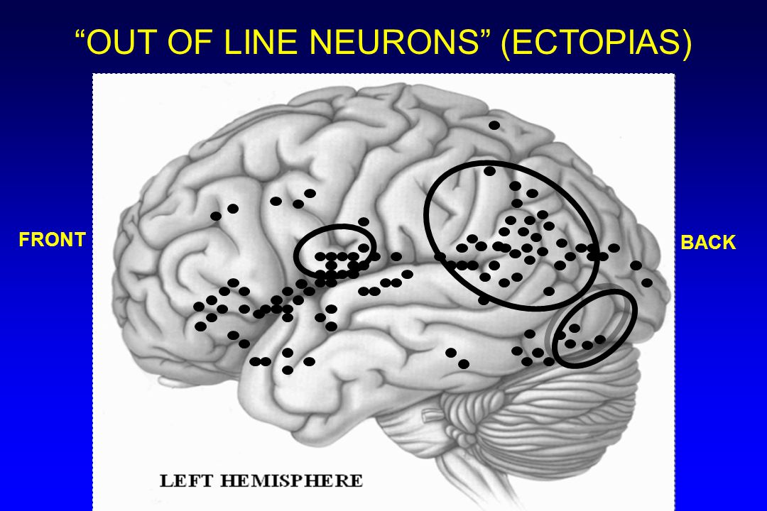 OUT OF LINE NEURONS (ECTOPIAS)