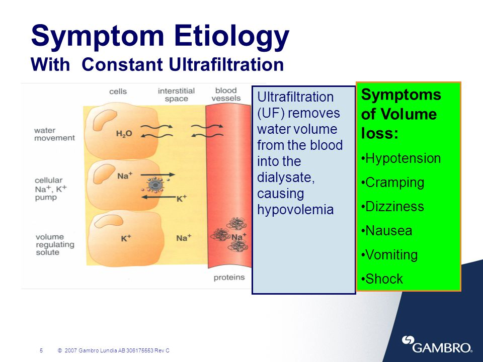 Symptom Etiology With Constant Ultrafiltration