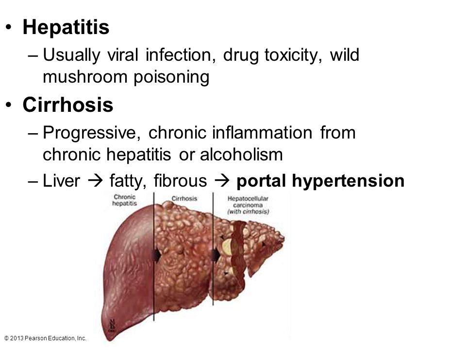 Hepatitis Usually viral infection, drug toxicity, wild mushroom poisoning. Cirrhosis.