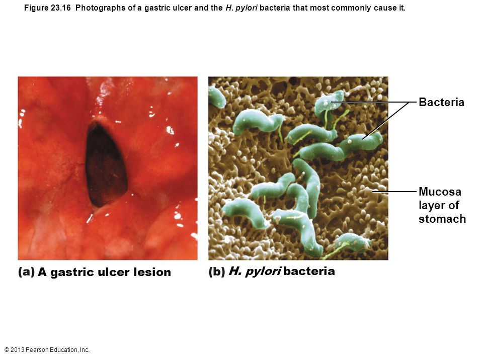 Bacteria Mucosa layer of stomach A gastric ulcer lesion