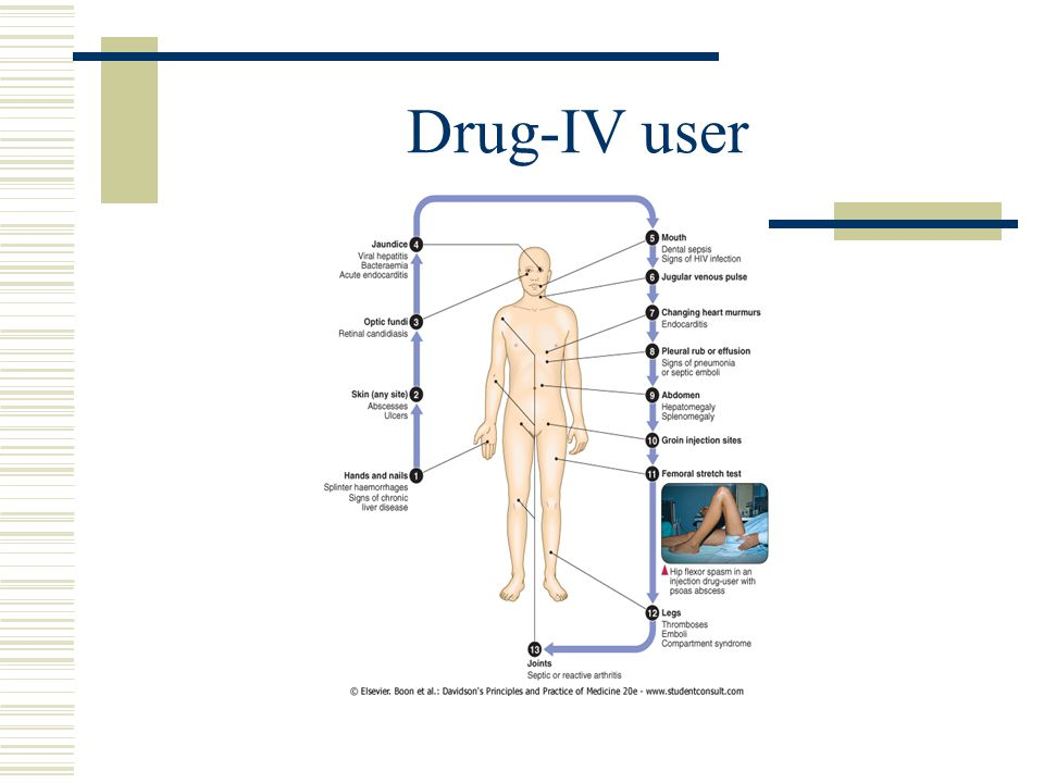Drug-IV user