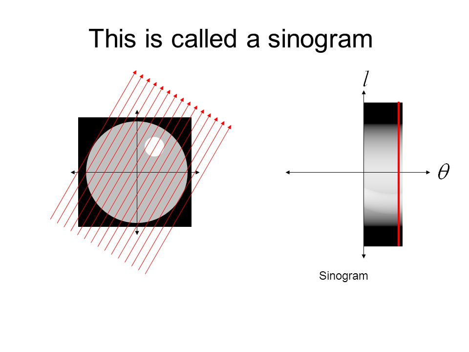 This is called a sinogram
