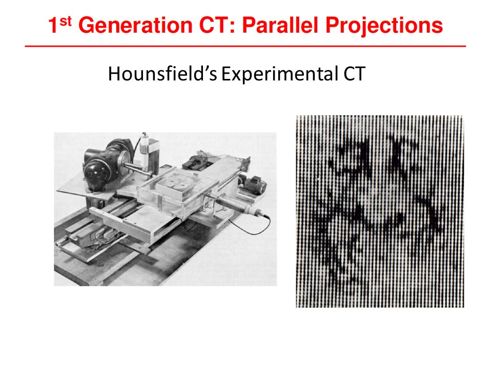 Hounsfield's Experimental CT