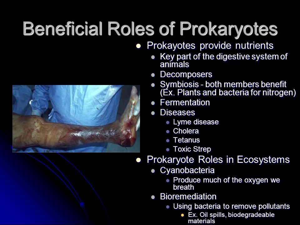 Beneficial Roles of Prokaryotes
