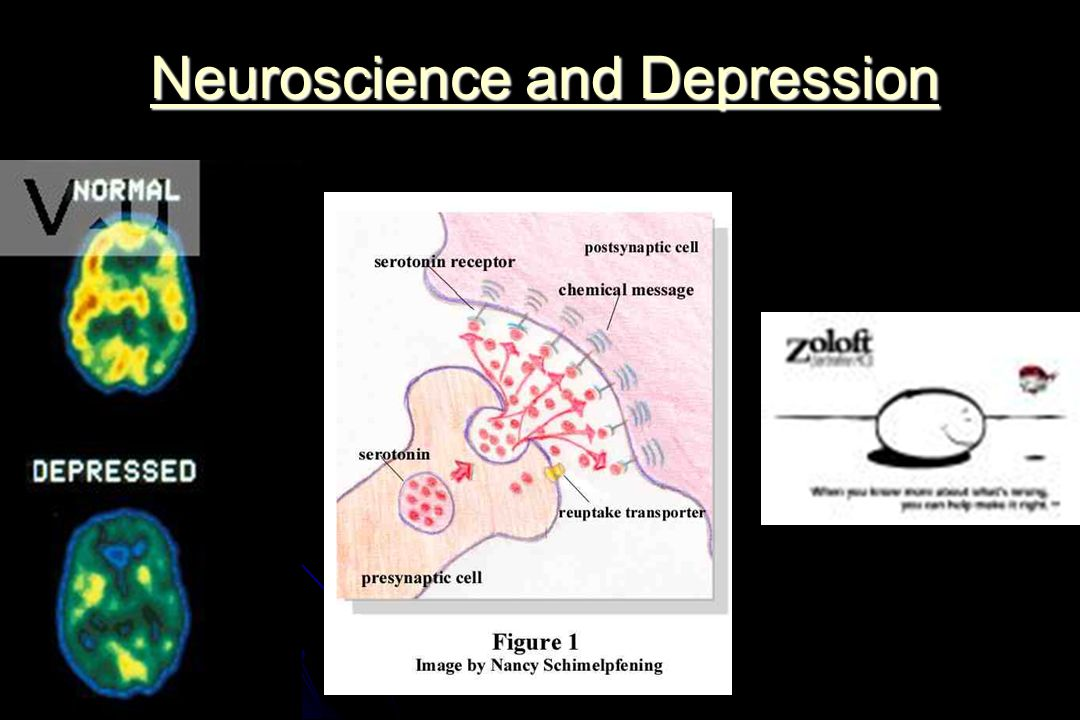 Neuroscience and Depression