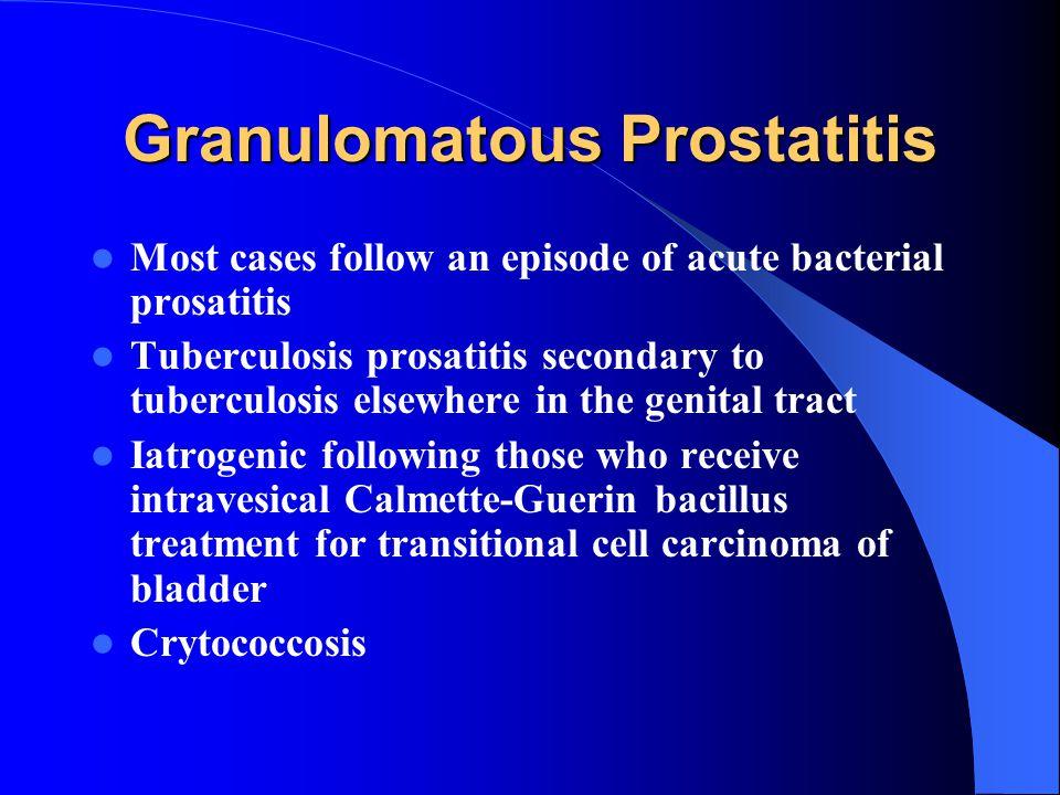 Granulomatous Prostatitis