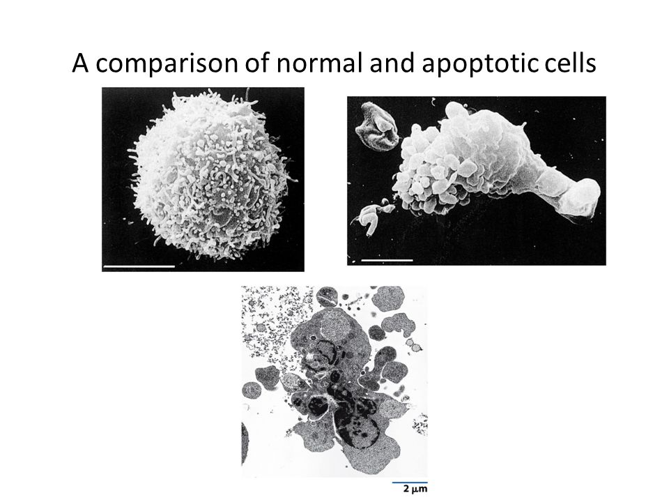 A comparison of normal and apoptotic cells