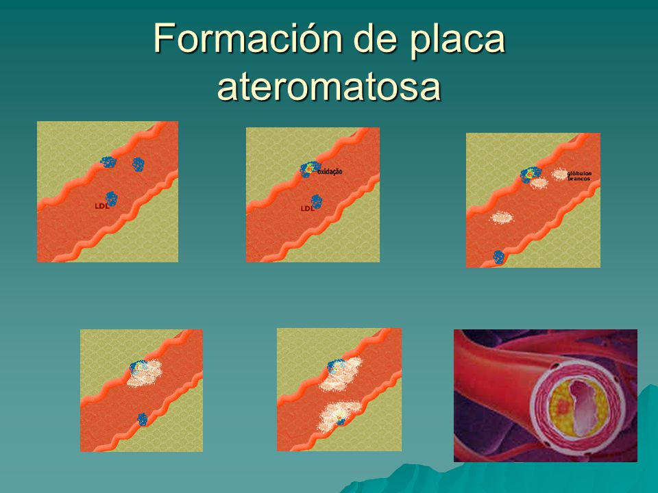 Formación de placa ateromatosa