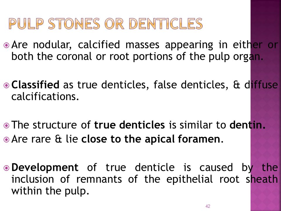 PULP STONES OR DENTICLES