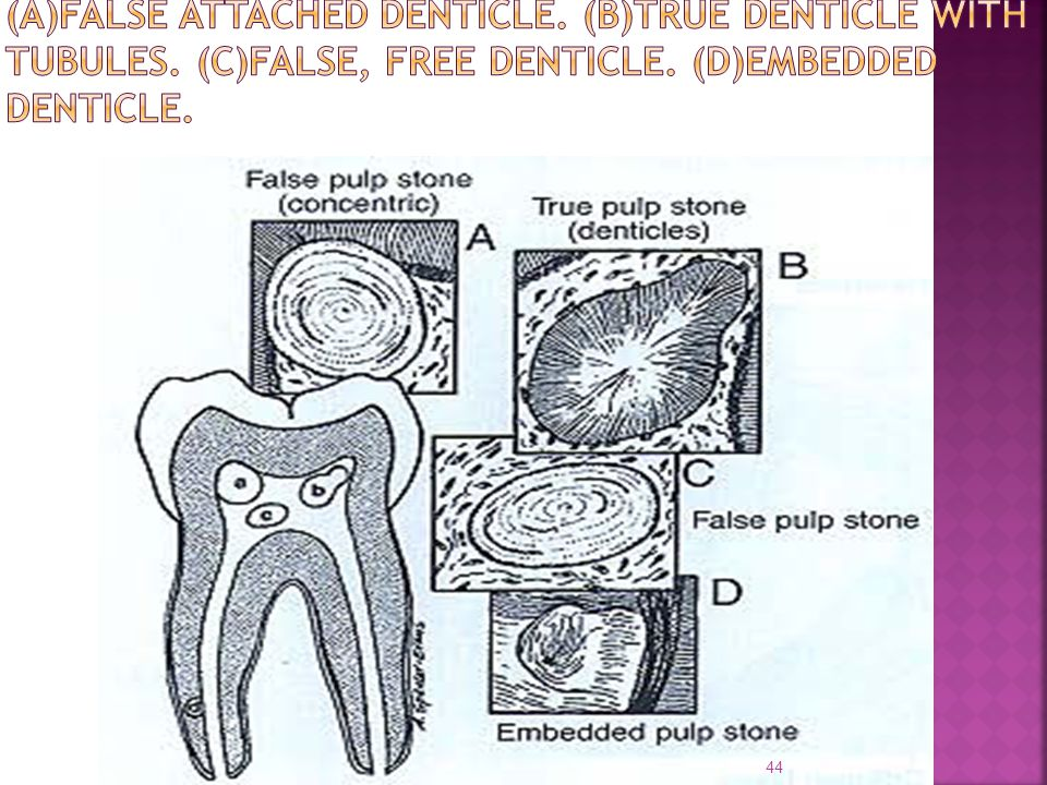(A)FALSE ATTACHED DENTICLE. (B)TRUE DENTICLE WITH TUBULES