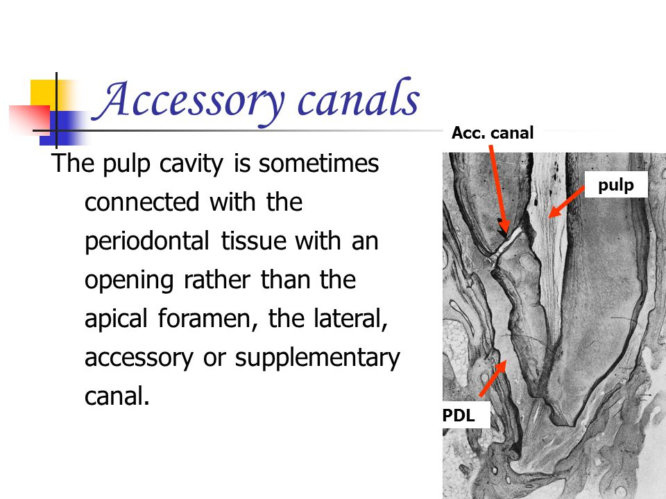 Accessory canals Acc. canal.