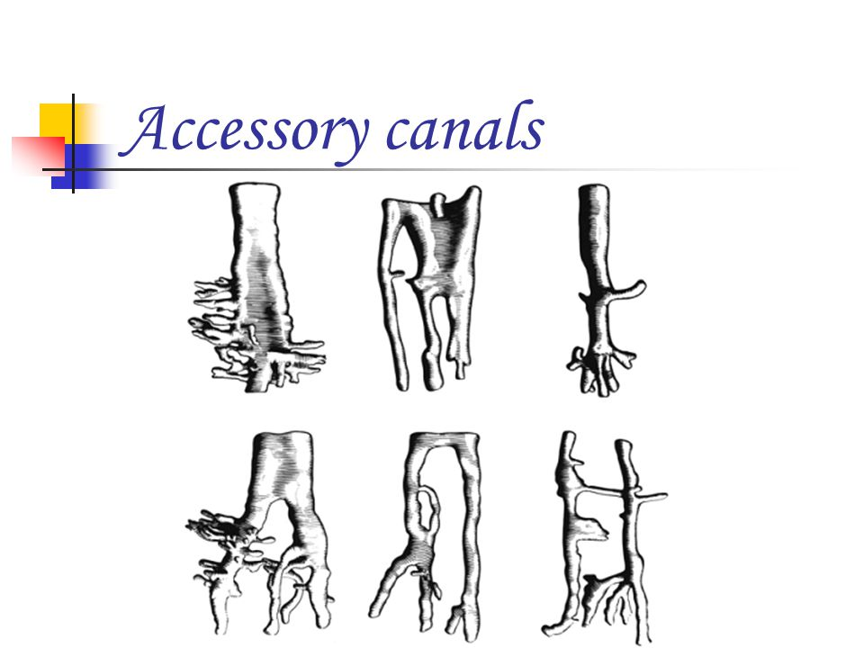 Accessory canals