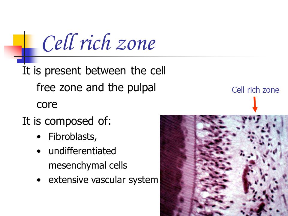 Cell rich zone It is present between the cell free zone and the pulpal core. It is composed of: Fibroblasts,