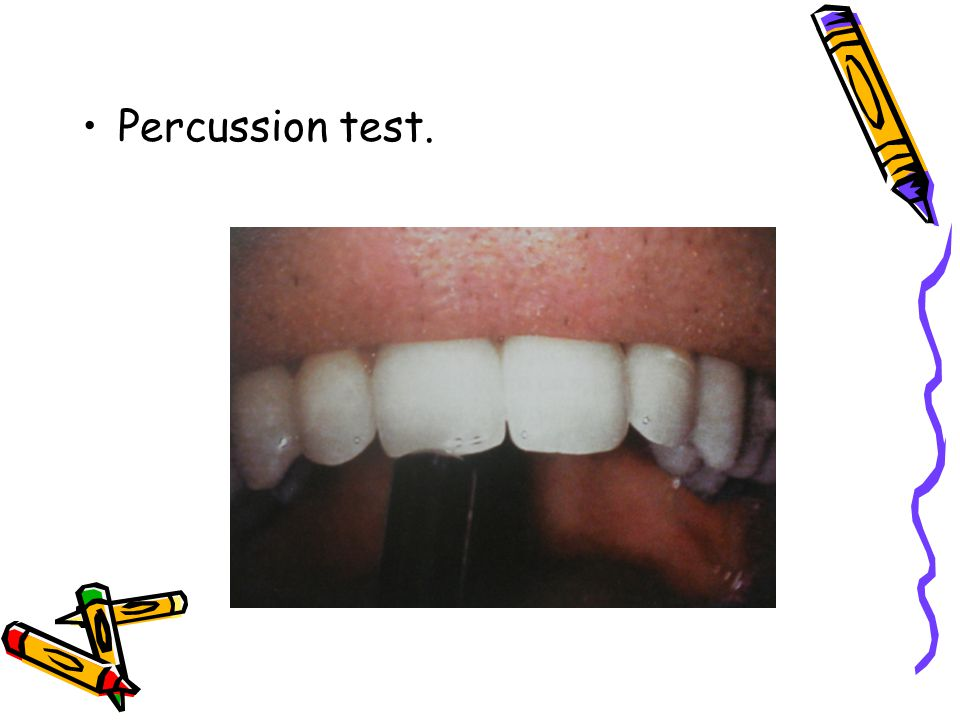 Percussion test.