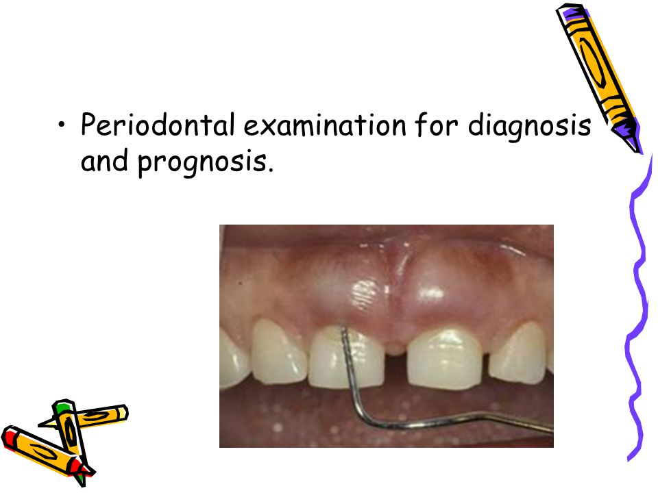 Periodontal examination for diagnosis and prognosis.
