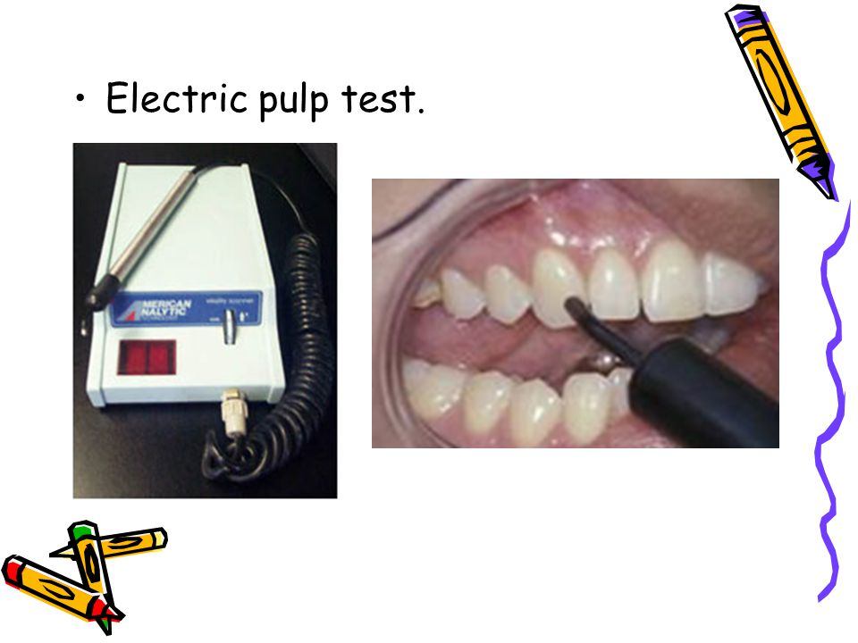 Electric pulp test.