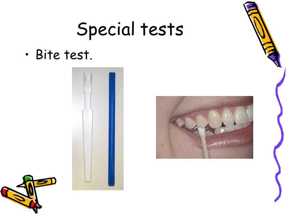 Special tests Bite test.