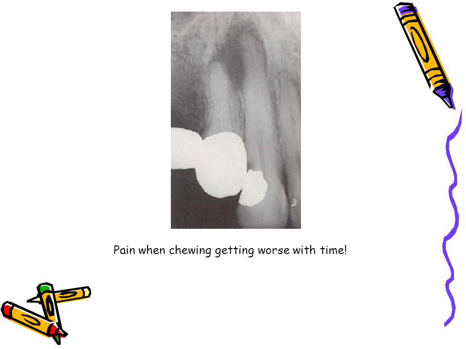 Pain when chewing getting worse with time!