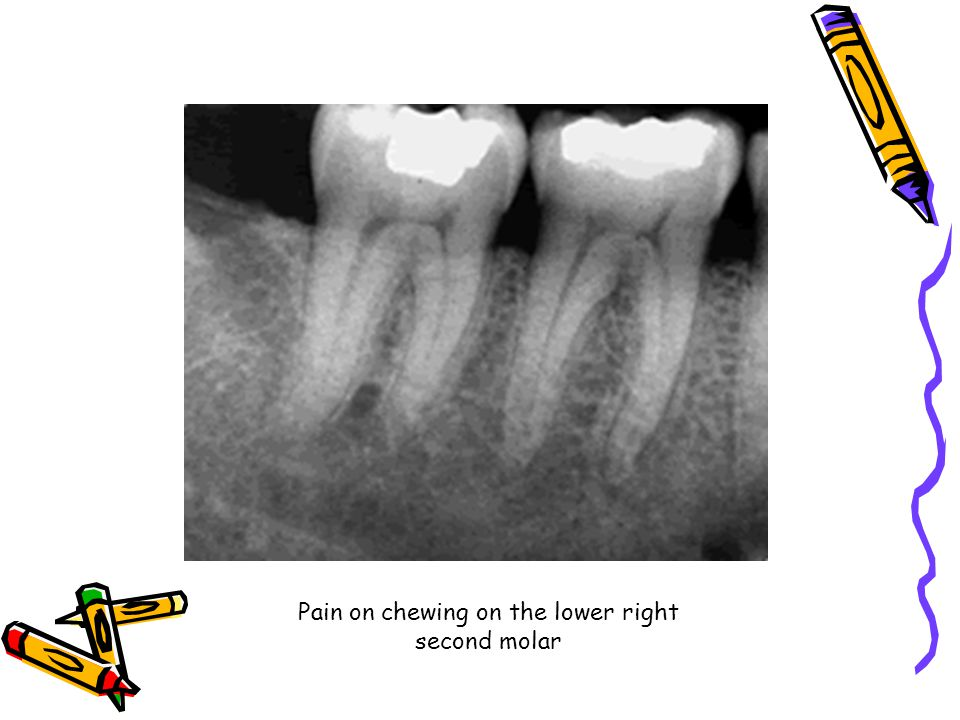 Pain on chewing on the lower right second molar