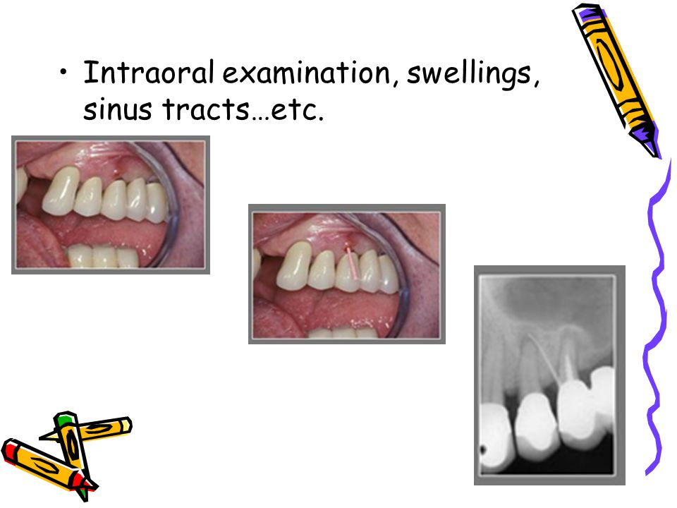 Intraoral examination, swellings, sinus tracts…etc.